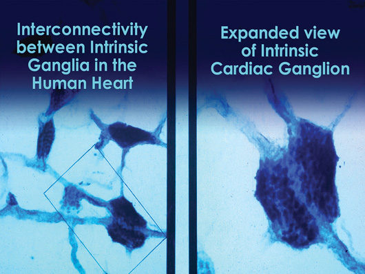 Interconnected Neurons in the Heart