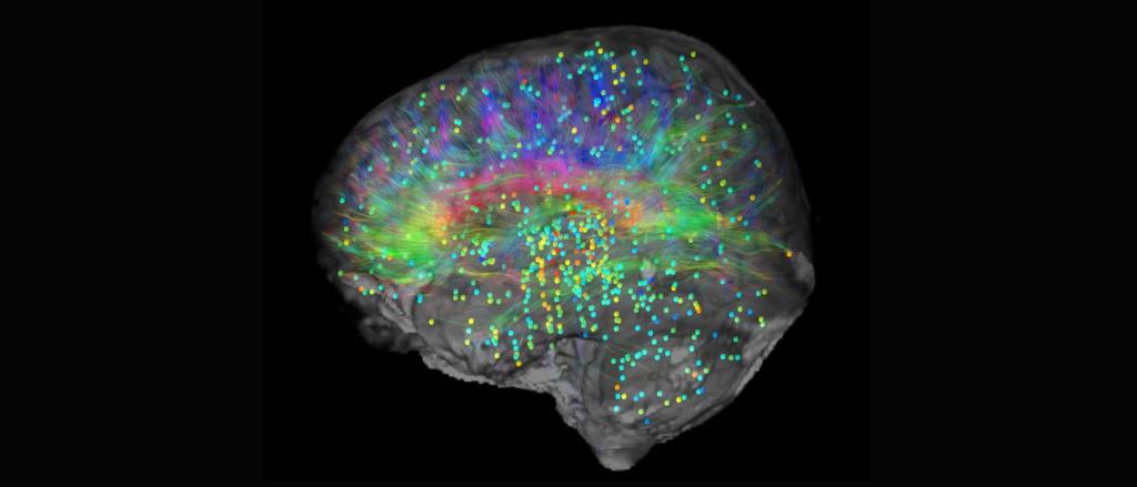 Neuroplasticity - brain map